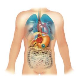 Gelule BodyCap e-Celsius dans l'estomac d'un sujet